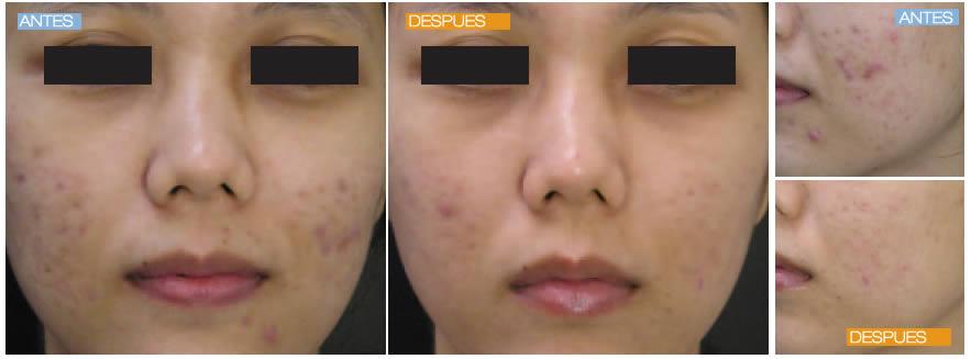 Acné activo y cicatrices de acné antes y después
