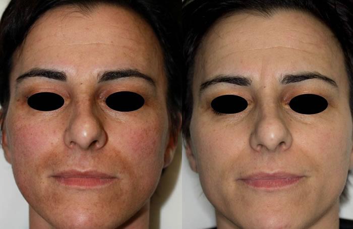 Las revocaciones las manchas de pigmento sobre la persona