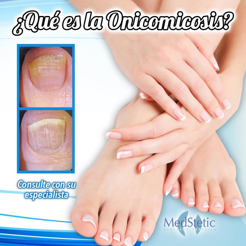 Hongos en las uñas ¿Qué es la onicomicosis? - Medstetic Panamá