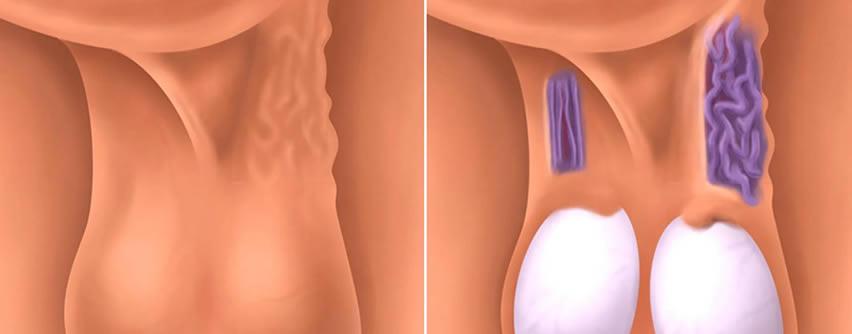 Varicocele: Causas, síntomas y tratamiento – Medstetic Panamá