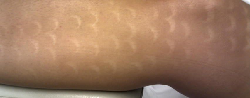 quemaduras por depilación láser
