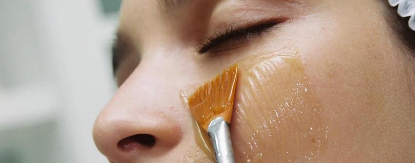 Qué debes saber antes de realizarte un peeling químico