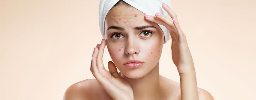 Descubren anticuerpos que neutralizan la inflamación del acné