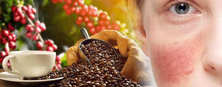 Descubren una relación entre el consumo de café y la rosácea