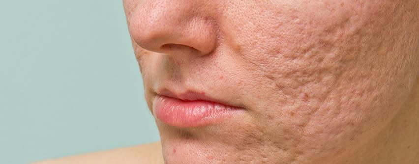 Cicatrices de acné: Causas, tipos