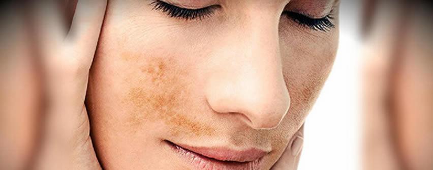 Enfrentando a las manchas en la piel