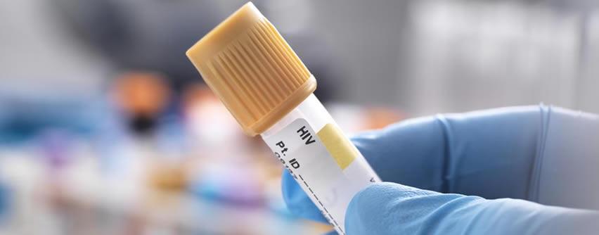 Segundo caso de remisión del VIH-1 reportado