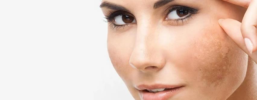 Cómo eliminar las manchas de la piel más frecuentes