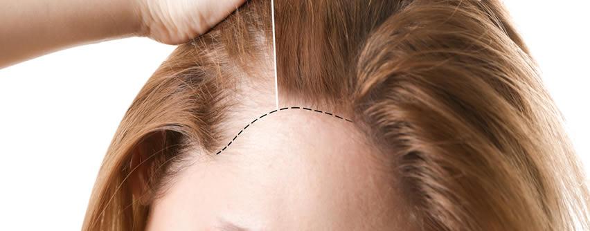 Cirugía de trasplante capilar ha aumentado 67% en mujeres
