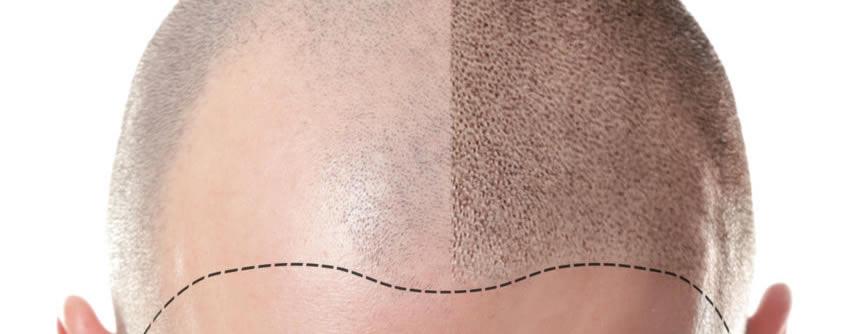 Todo sobre los implantes capilares