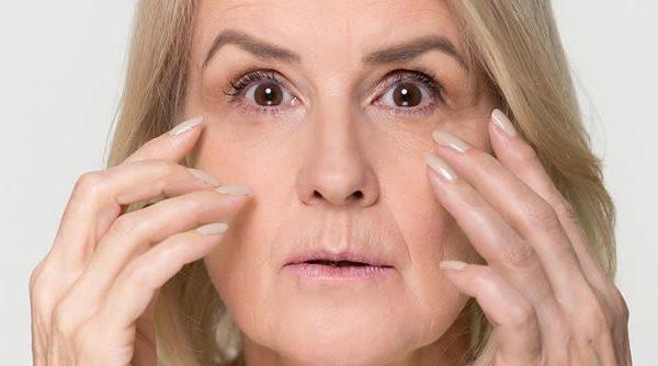 Arrugas en mejillas y pómulos