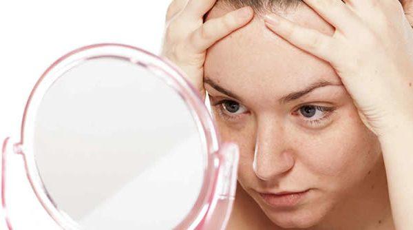 Dismorfobia y cosmeticorexia, las nuevas 'enfermedades' de la Medicina Estética