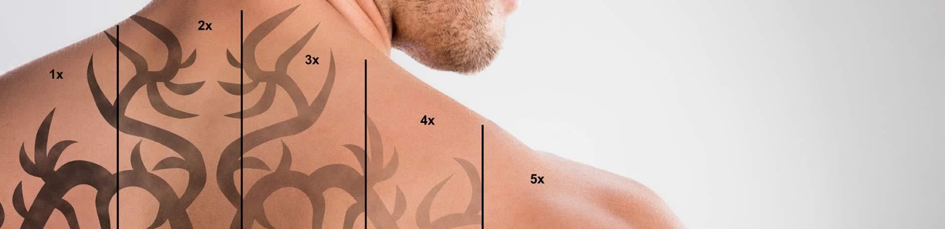 Eliminación de tatuajes: Opciones, cifras y resultados