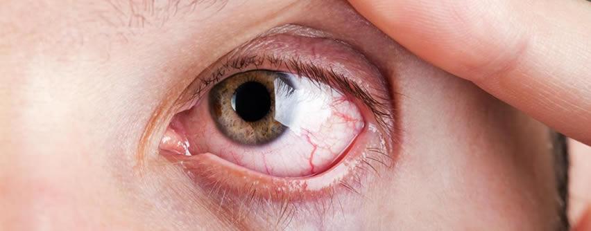 Posibles causas del enrojecimiento de los ojos