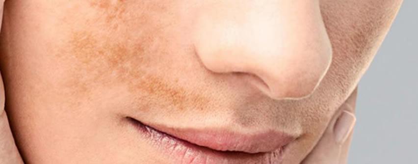 Ácido tranexámico: tratamiento oral para luchar contra las manchas