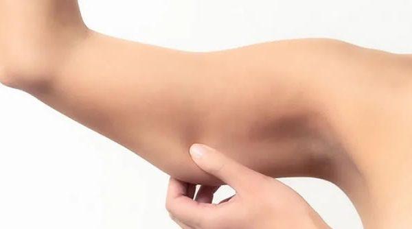 Cómo eliminar la flacidez de los brazos