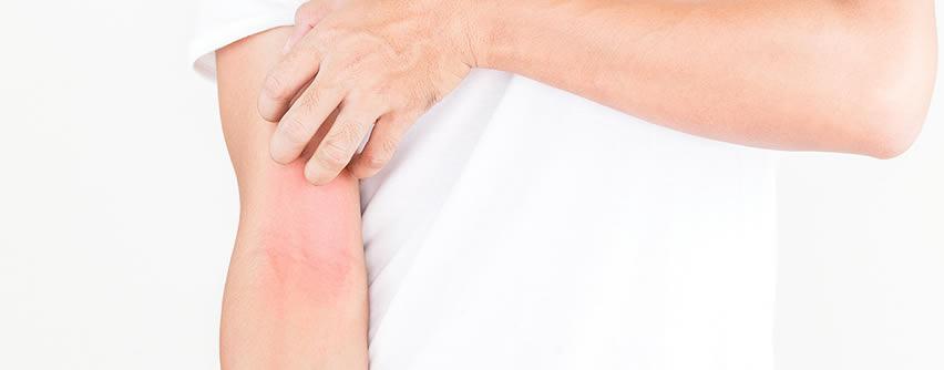 Nuevos fármacos actualizan el tratamiento de la dermatitis