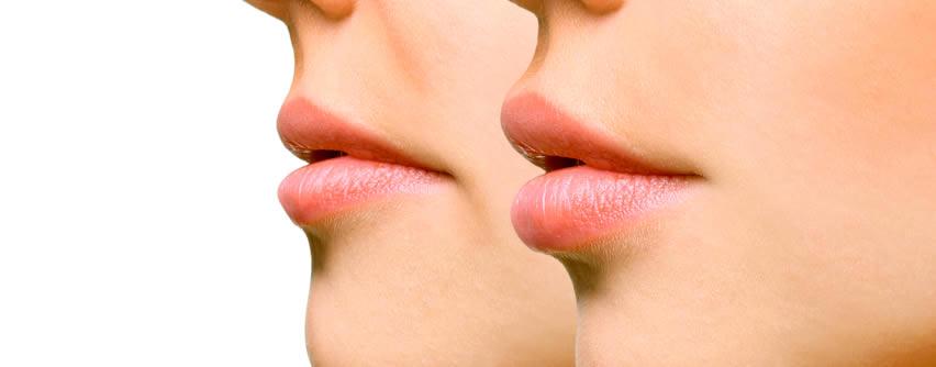 Aumento de labios: los tratamientos con resultados más naturales