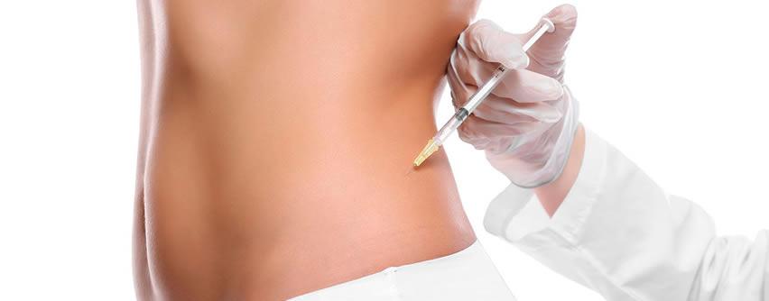 Intradermoterapia, tratamiento mínimamente invasivo para adiposidad localizada